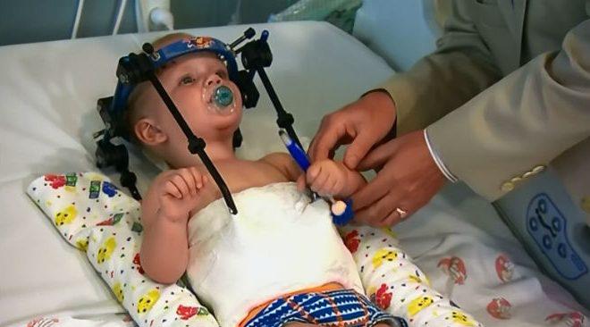 Врачи пришили обратно оторванную голову ребенка
